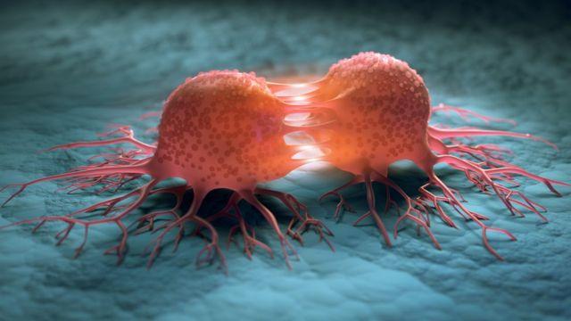 Kanser Belirtileri Nelerdir?